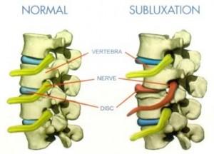 subluxation-of-spine